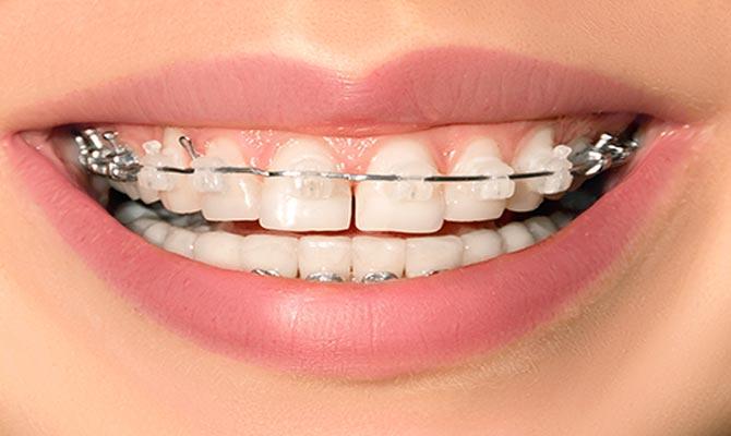 Klassiska tandställningen