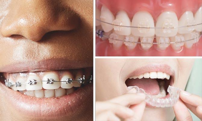 skaffa tandställning som vuxen