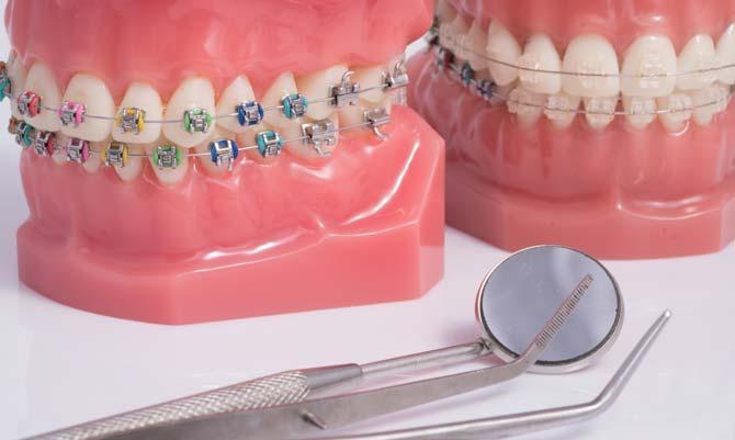 Tandställning som är bäst