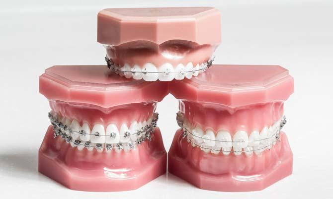 När vet man att man behöver tandställning