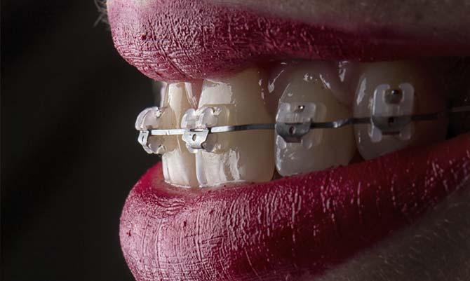 Tandställning över- och underbett