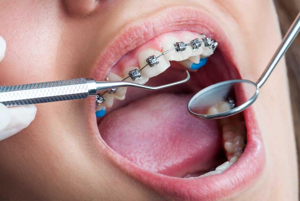fila tänderna med nagelfil