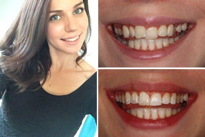 tandställning före efter