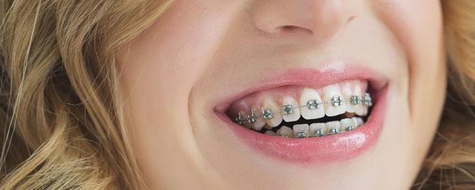 Då vet du om du behöver tandreglering