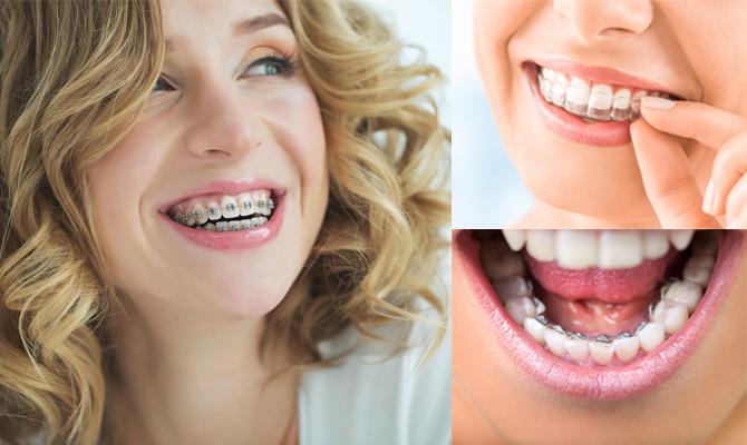 tandställningar