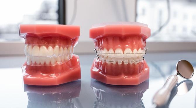 tandställning och bettfel