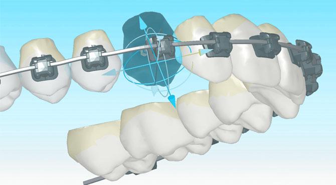 digital buccal tandställning av Insignia