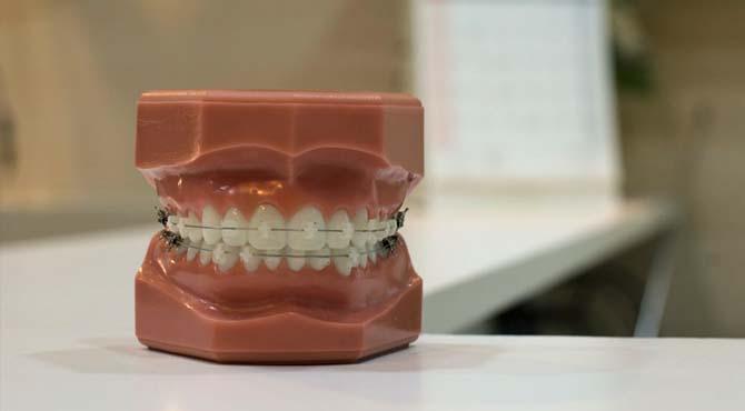 Trasig tandstallning